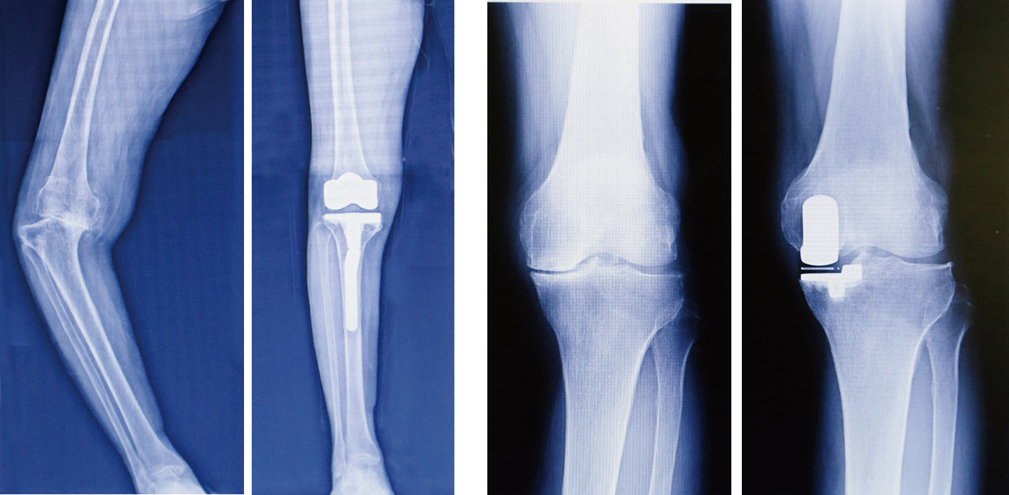 術 置換 全 膝 人工 関節