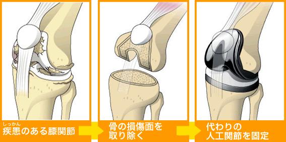 「人工膝関節」の画像検索結果