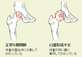 股関節 臼 蓋 形成 不全